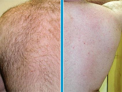 laser hair removal   birmingham al   dr. sarah sawyer, Human Body