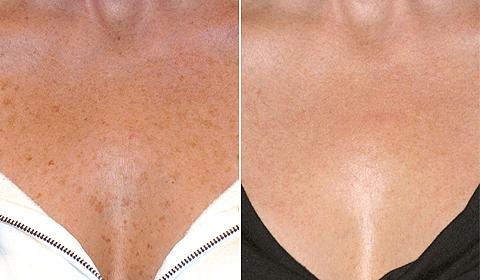 Sun Spots Age Spots Sun Damage Treatment Birmingham Al