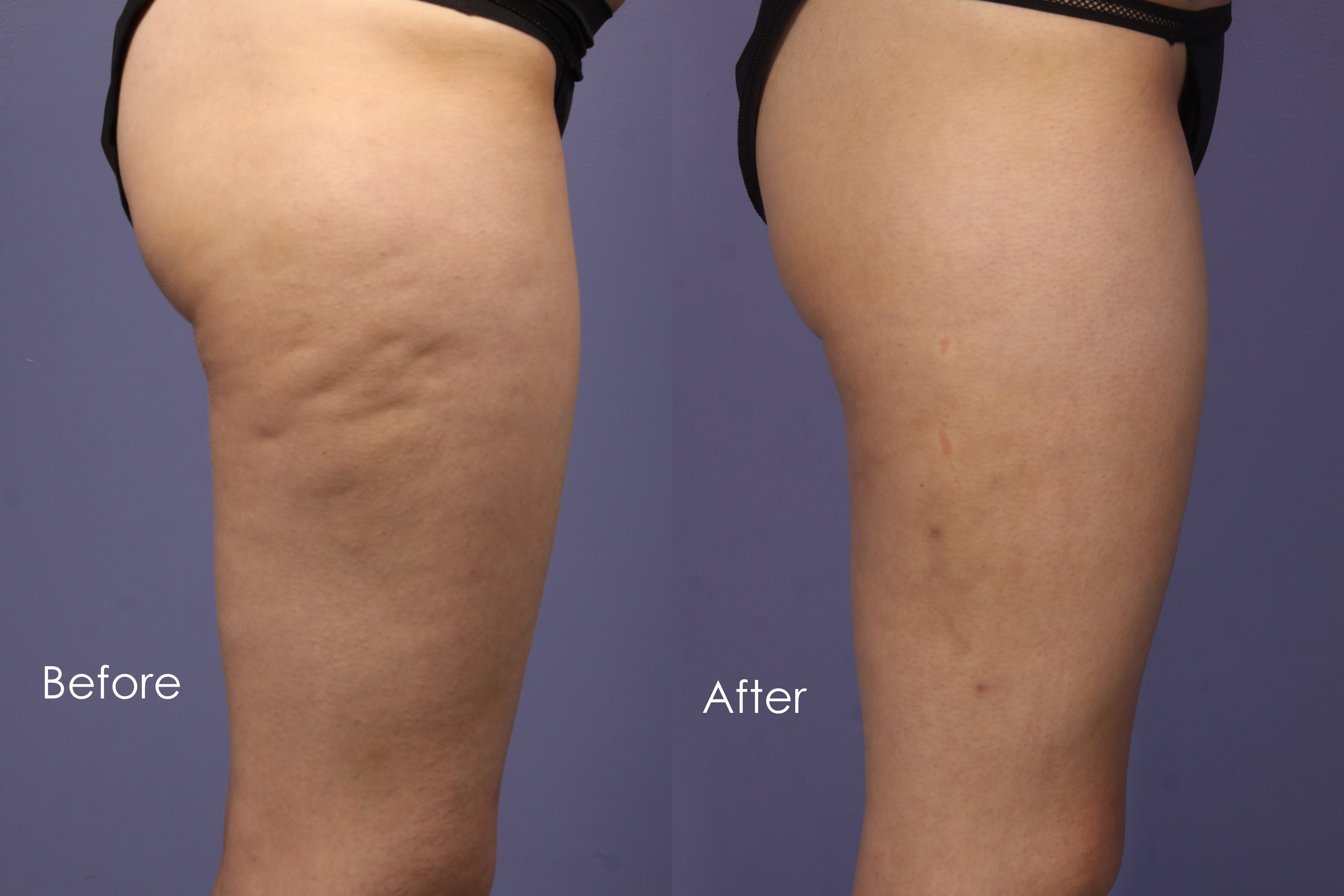 Cellulite Fat Reduction 24